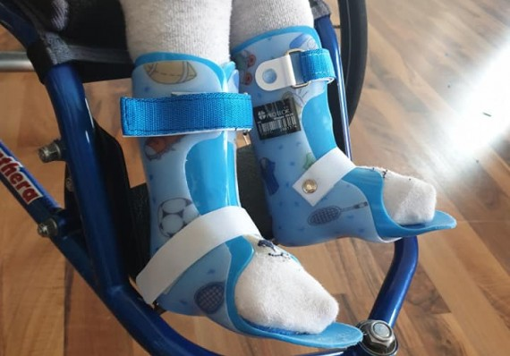 I have my first foot orthosis. They help me keep my feet in the right place.